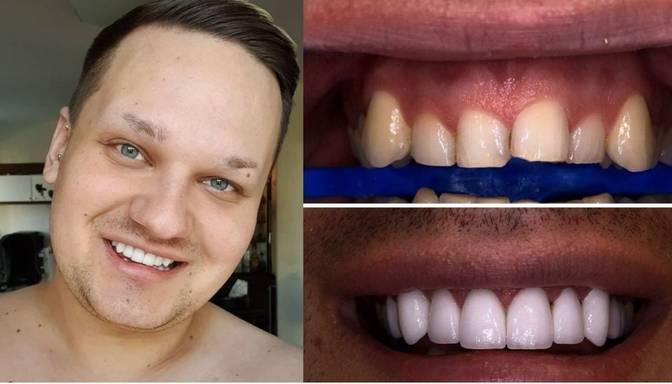 "Latvijā pirmais ""Drag queen"" ticis pie aptuveni 5000 eiro vērta smaida"