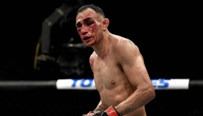 UFC 249: Fergusonam lauzts labās acs dobuma kauls