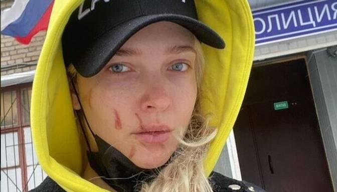 Vienā no Maskavas naktsklubiem nežēlīgi piekauta ekrānu zvaigzne Svetlana Stepankovska
